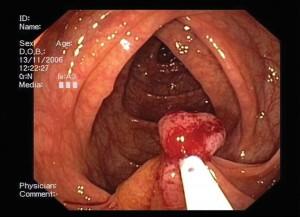 Bilde 2. Mellomstor bredbaset polypp, Polyppen  løftes opp for å lage avstand til tarmveggen ved diatermibehandlingen