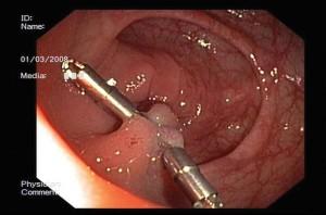Bilde 3. Stilket polypp som er resecert. På forhånd lagt klips fra motsatte sider for å forhindre blødning.