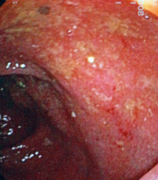 Clostridium-difficile-kolitt-b