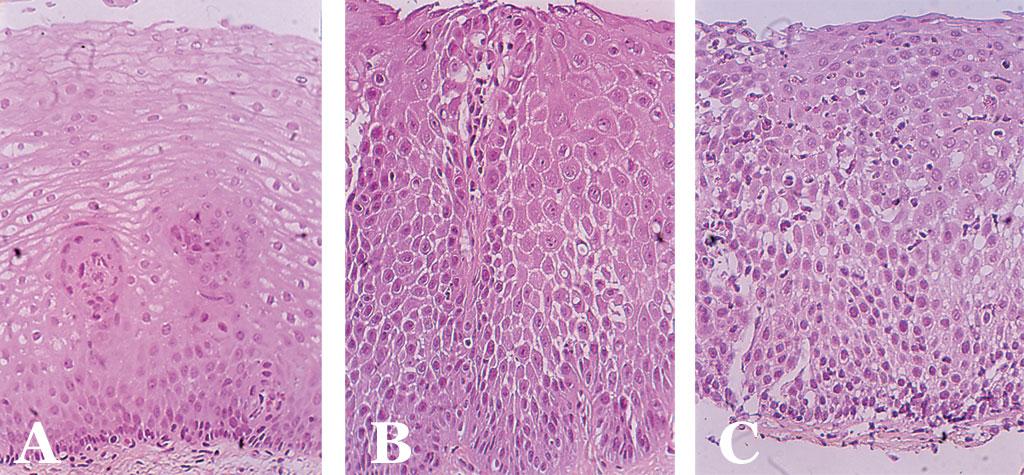 Fig-2A-C-osofagus