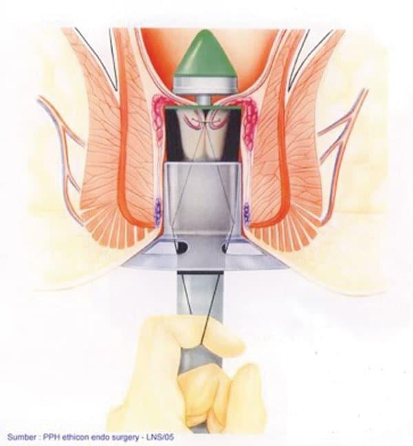 operasjon hemoroider smerter