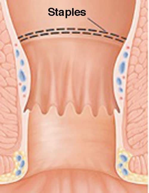 hemoroider operasjon komplikasjoner