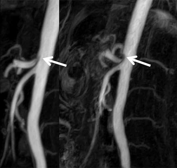 Figure 7. MR-Angiography in CGCS. Clearly visible increase of celiac trunk compression (arrows) from inspiration (left) to expiration (right).