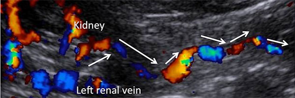 Figure 8. Collateralization of the left renal vein: here via the left ovarian vein. Meandering course with inversed flow towards the left ovary.