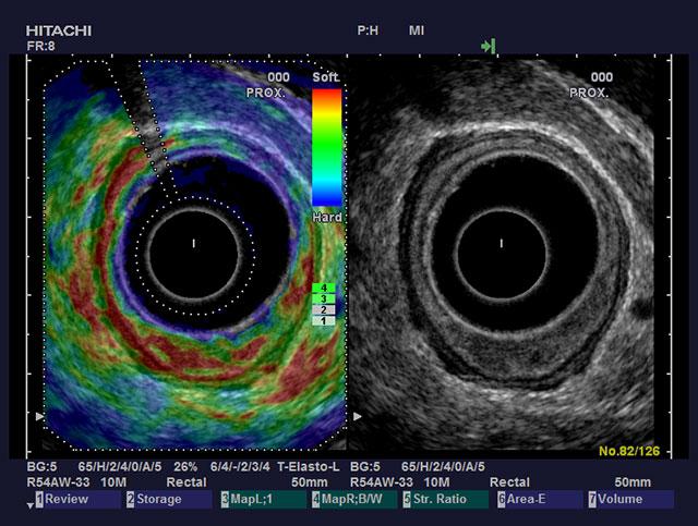Fig 3: Man ser fra klokken fire til klokken syv en svulst som på ERUS synes å vokse inn i, men ikke gjennom submucosa. Det vil si en uT1 tumor, altså tidlig rektum cancer. Elastogrammet viser en svulst som er like hard, eller mykere, enn referansevev i samme avstand fra proben/ballongen. Strain Ratio var <1.25. Histopatologisk undersøkelse viste et adenom(pT0).