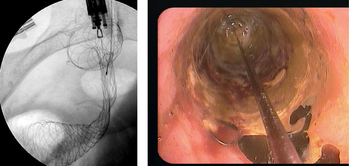 Figure 4: Insufficient stent deployment (a), treated by cautious balloon dilatation (trans-balloon view) (b).