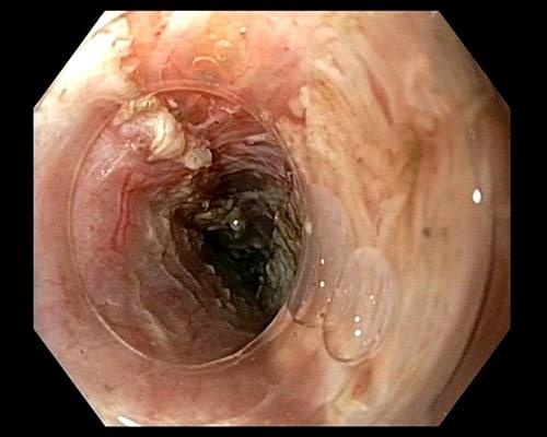 Bilde 2: Selektiv myotomi av sirkulærmuskulatur. I bakgrunnen skimtes pericard.