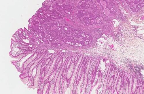 Adenokarsinom-histo2