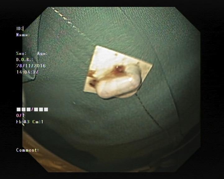 Figur 2: Tramadoltabletten ligger kilt fast i høyde med øvre sfinkter. Ved reinspeksjon kan man se inngangen til divertikkelen.