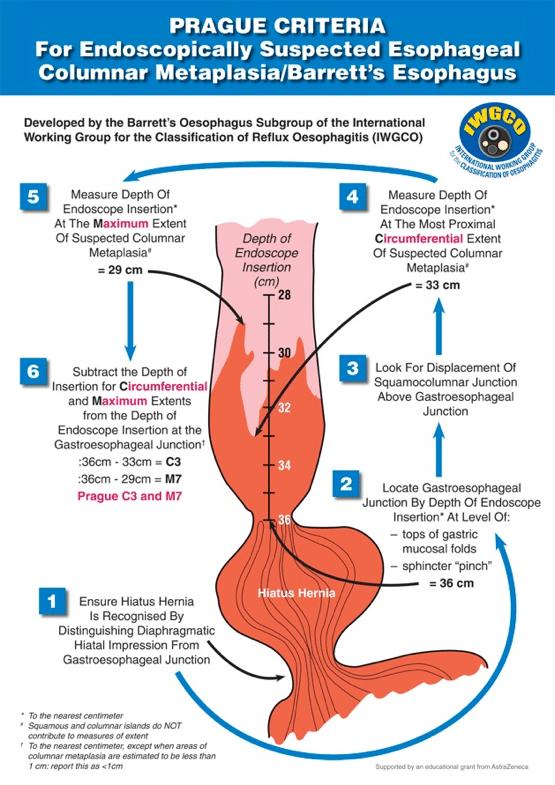 Figurene viser noen eksempler av en typisk pasient som har gått til kontroll for kortsegment Barretts, hvor en tilfeldig biopsi har vist HGD. (Kilde: International working group for classification of oesophagitis)