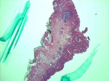 Enkel kurativ EMR, biopsi viste R0 reseksjon av et adenocarcinom T1m3 på 6 mm