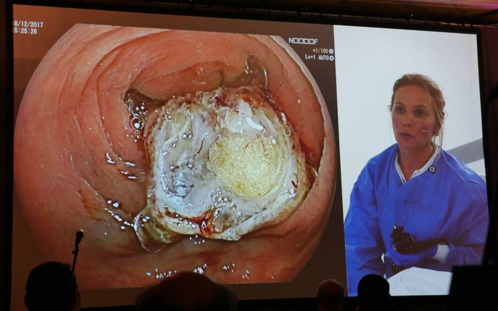 The egg sign er bekreftelse på en vellykket, endoskopisk fullveggsreseksjon i colon. Utført av Barbara Bastiaansen (Amsterdam).