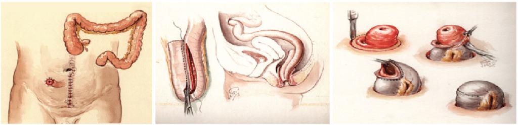 Figur 1: Tre operasjoner; først colektomi med iliostomi. Deretter rektum-reseksjon med reservoar-anleggelse, vanligvis etter 4-6 måneder, Til slutt lukning av ileostomi etter ytterligere 2-3 måneder