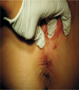 Figur 2. Suspekt fistelåpning i perineum (A)