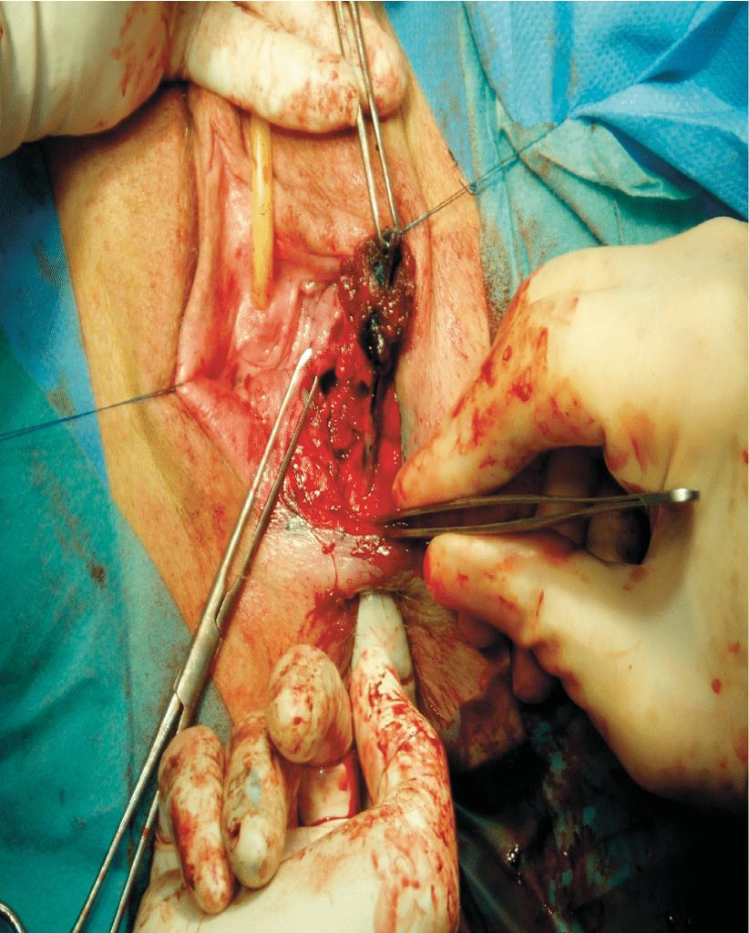 Figur 3. Fistelplastikk: Fistelgangen er dissekert ut, den er blåfarget pga. peroperativ methylenblått. Operatør palperer rektalt og fistel løses fra rektumveggen. Lagvis lukning fra rektum, rektovaginalspatiet og til slutt vaginalmukosa/perinealhud.